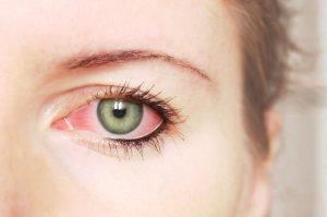 Pink Eye Doctors Note Bestfakedoctorsnotes Net